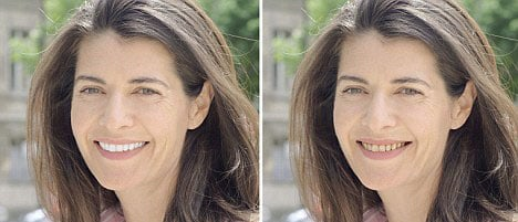 Look younger…just by smiling (here's how!)