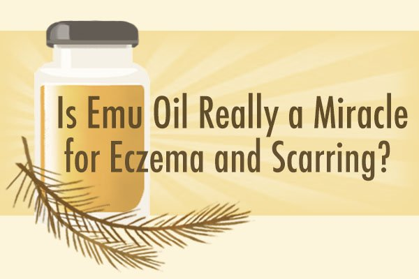 Is Emu Oil Really a Miracle for Eczema and Scarring?