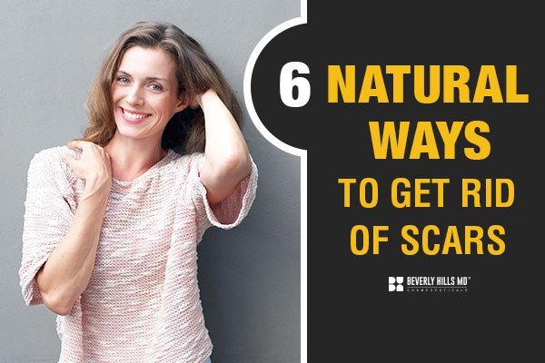 8 Amazing Natural Scar Remedies (One may surprise you!)