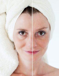 anti aging collagen
