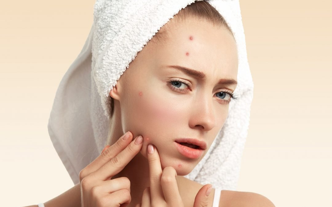 How To Get Rid of Face Scabs (admit it, you popped that pimple…)