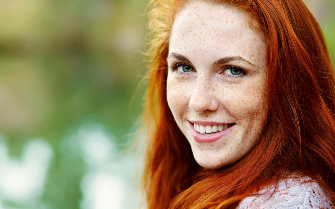Have Freckles? 6 Facts You Should Know…