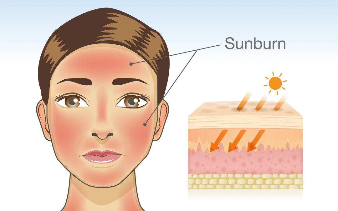 Sunburn Relief to Soothe Damaged Skin Fast