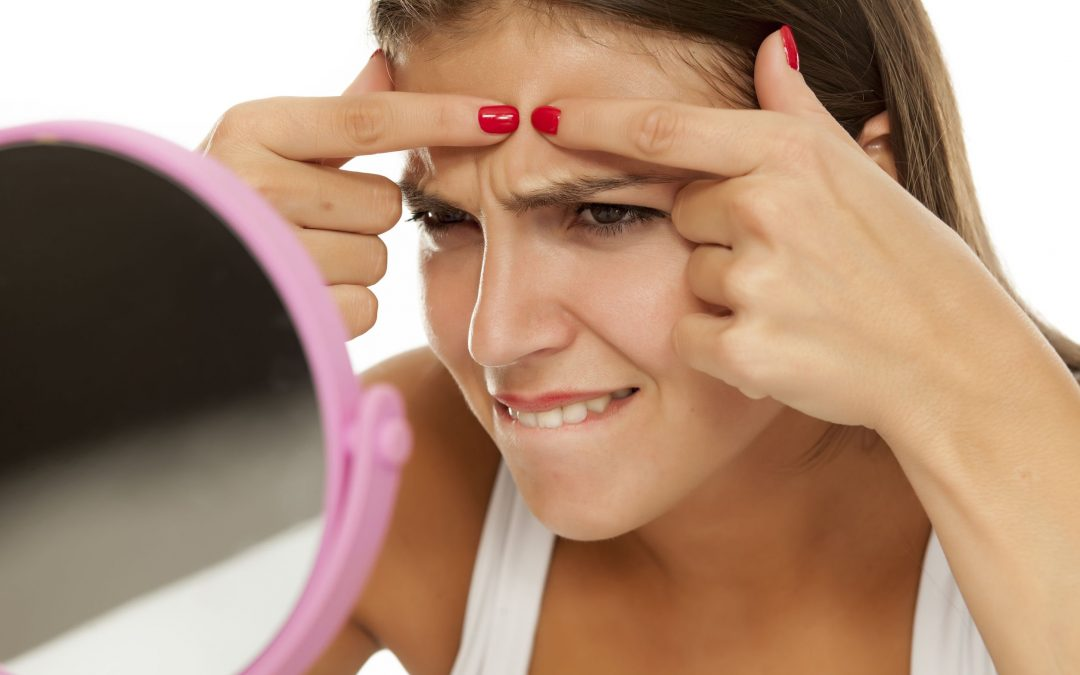 Stop! Don't Pop That Zit! Here Are 5 Things To Try First