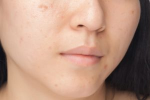 hyperpigmentation | Beverly Hills MD