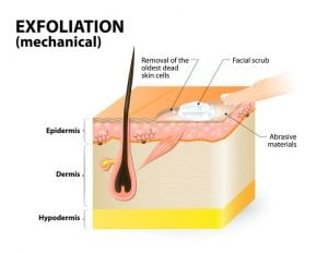 Exfoliation | Beverly Hills MD