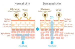 Winter Skin Tips | Beverly Hills MD