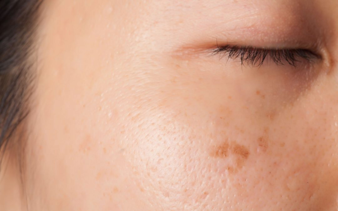 What Causes Brown Spots on the Skin?