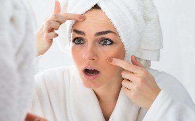skin purging | Beverly Hills MD