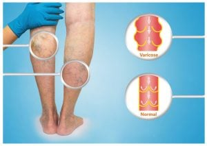 Varicose Veins | Beverly Hills MD