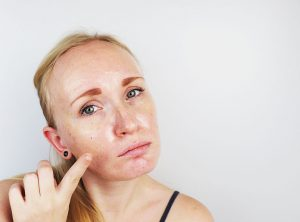 how to determine your skin type | Beverly Hills MD