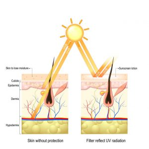 importance of sunscreen | Beverly Hills MD