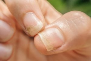 damaged nails | Beverly Hills MD