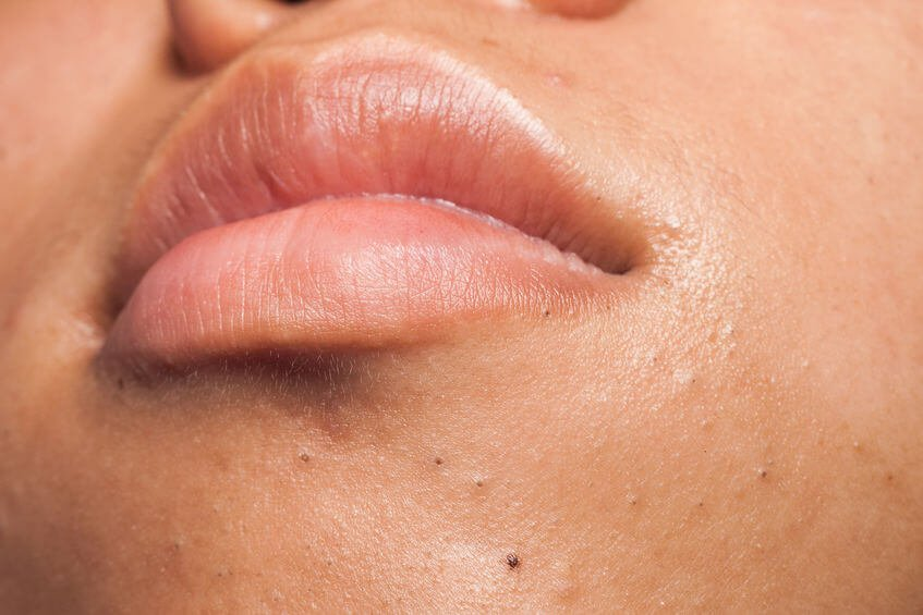 DIY Skin Care At Home: How To Remove Blackheads Naturally