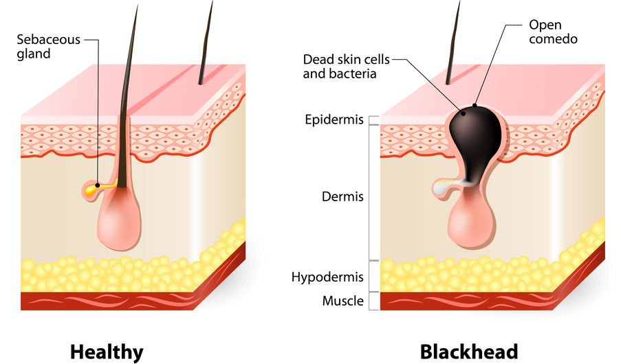 how to remove blackheads naturally | Beverly Hills MD