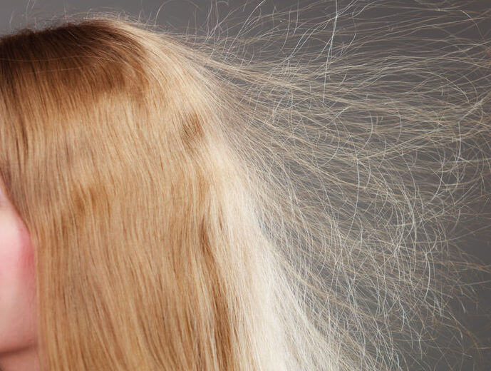 What Causes Static In Hair And How To Deal With It