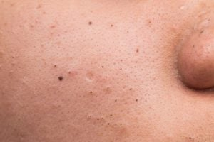 blackheads | Beverly Hills MD