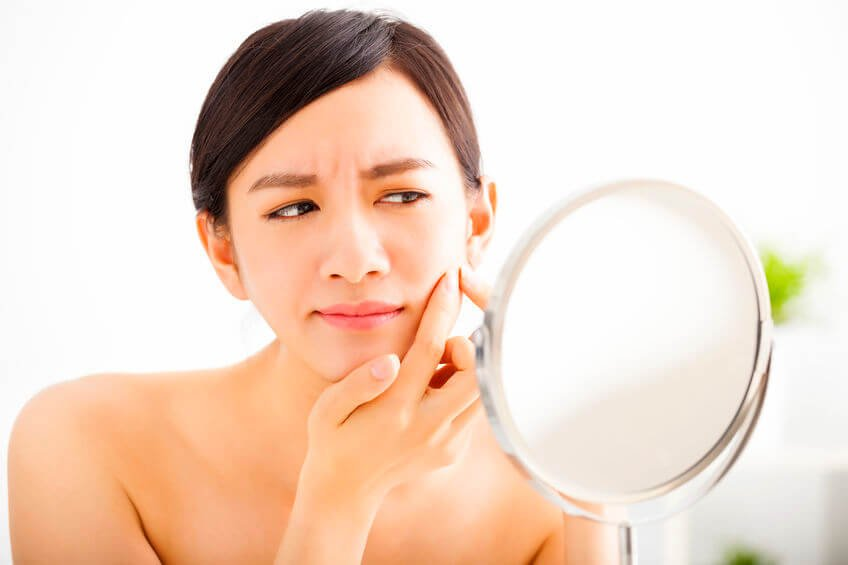 Whiteheads Vs Blackheads: What's The Difference Between These Two Types Of Blemishes?