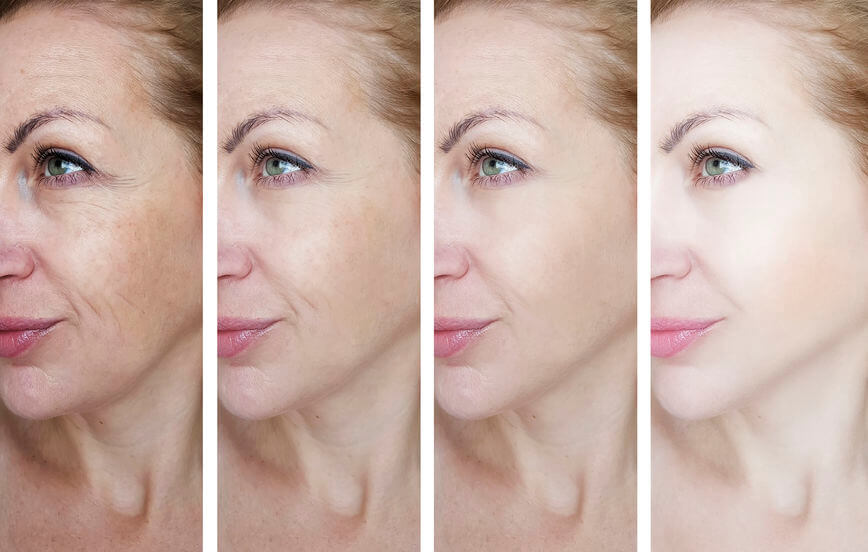 what is retinol | Beverly Hills MD