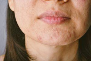 skin blemishes | Beverly Hills MD