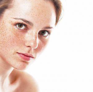 freckles | BHMD